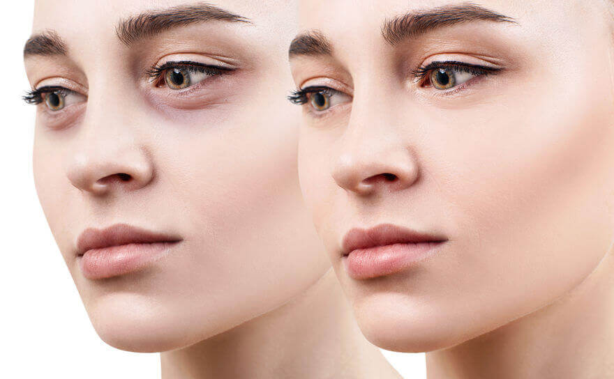 what causes dark circles under eyes | City Beauty