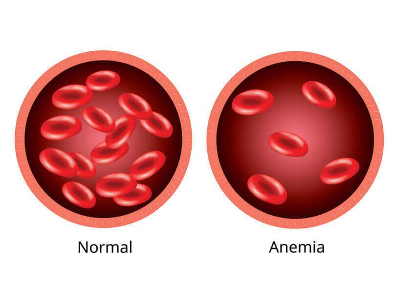 anemia | City Beauty